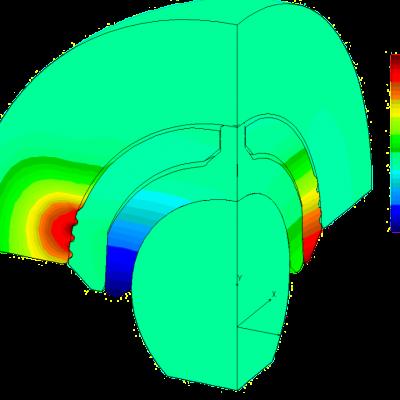bio-médical - prothèse hanche - analyse non-linéaire